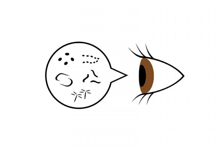 La forma macular no es un factor en el desprendimiento de retina