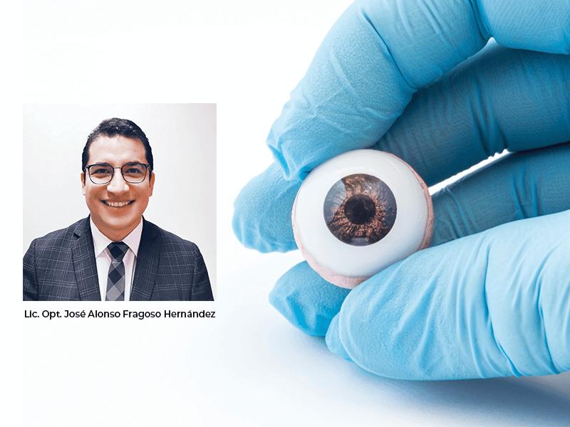 Extrusión de implantes porosos y prótesis ocular